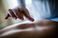 Doctor Le Anh Thu performs acupuncture on a patient at her small practice in Hanoi, Vietnam. Doctor Thu has been practicing traditional medicine for over 20 years, and says that these days she uses 80% acupuncture and acupressure with patients.
