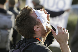 October 27, 2016 - Calais, Nord-Pas-de-Calais-Picardie, France - An activists tries to treat the tear gas damage to his eyes with wet tissues. The 4th day of the eviction of the jungle in Calais saw the continue demolition of the huts in the Jungle, as well as the first arrests of people who didn'Äôt leave and some minor clashes with activists opposed to the eviction. (Credit Image: © Michael Debets/Pacific Press via ZUMA Wire)