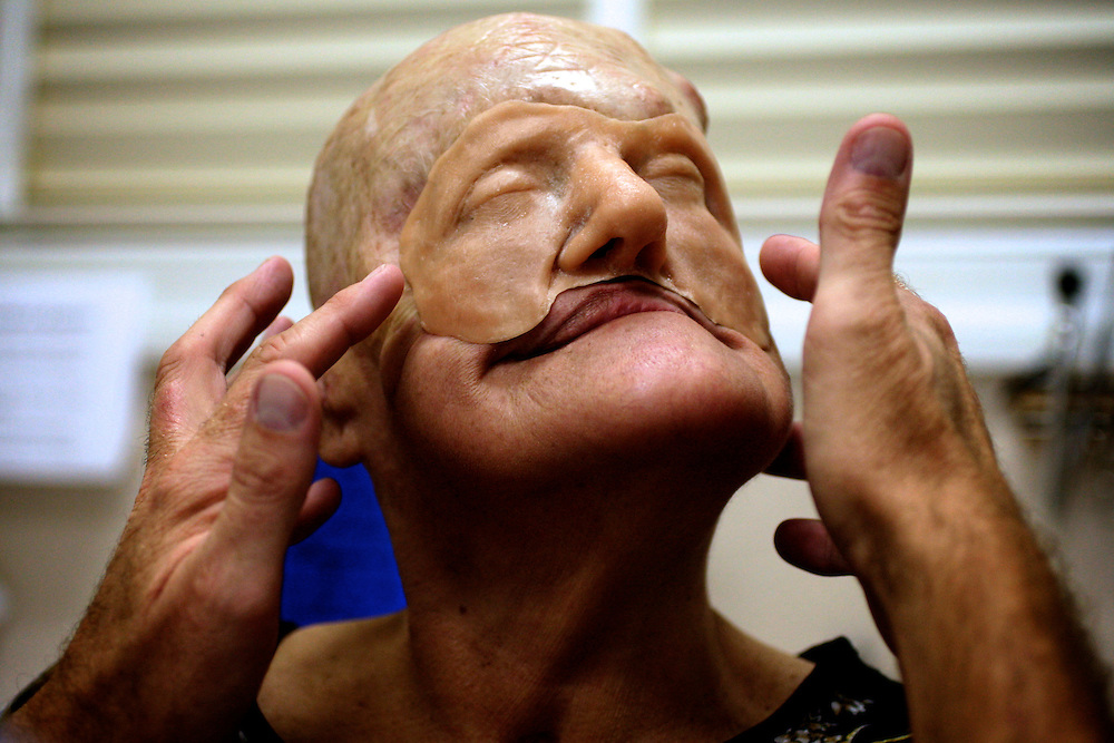 Amalia Mendoza turns her head as she is fitted with a wax prosthetic, a template for David Trainer to make a mold of for her Mendoza's new face. Greg Kahn/Staff