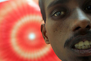 P.Naresh from South India lost his vision in his right eye after a freak accident while at work in Dubai.
