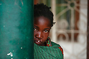 29, Alayna Albeno, Female, 14 years old, UCL, before, Travelled for 17 hours. Operation Smile Inaugural Mission to Beira, Mozambique. 6th June - 15th June 2014. Macuti Hospital. Beira Mozambique.<br /> <br /> (Operation Smile Photo - Zute Lightfoot)