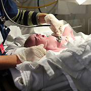 A newborn baby girl is medically examined straight after birth in a hospital environment. Photo Tim Clayton
