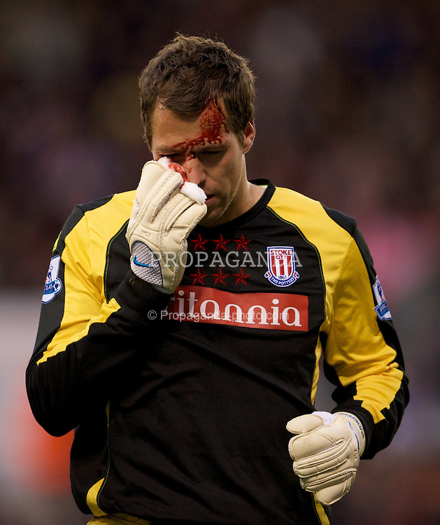 STOKE, ENGLAND - Sunday, October 19, 2008: Stoke City's goalkeeper Thomas Sorensen wipes away blood from his face after sustaining an injury during the Premiership match against Tottenham Hotspur at the Britannia Stadium. (Photo by David Rawcliffe/Propaganda)