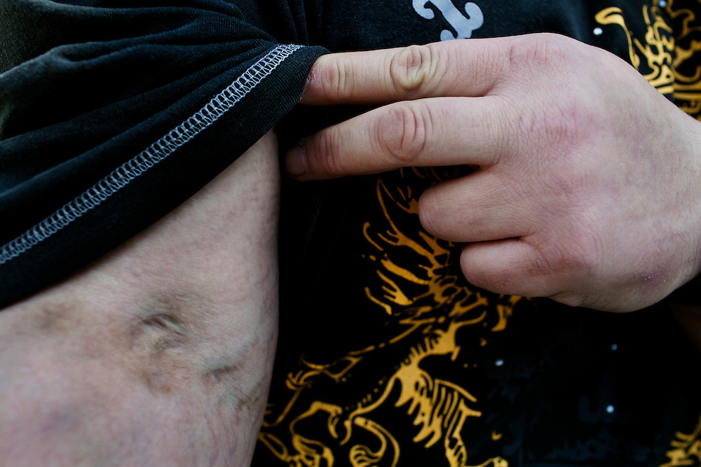 A heroin addict turned DEA informant in Columbus, Ohio shows me the scars left by his addiction.