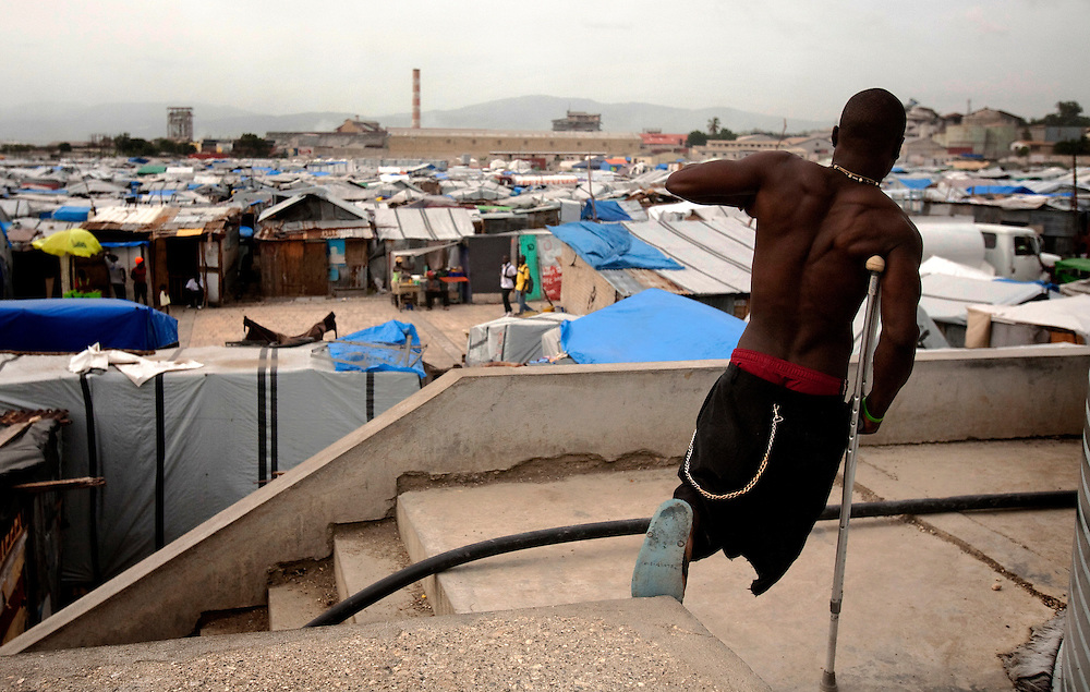 A man who lost his foot in the makeshift refugee camp, La Piste, in Port-au-Prince, Haiti on July 15, 2010. La Piste (French for &quot;runway&quot;)is a settlement sprawled across the site of a disused airport and now home to an estimated 20,000 earthquake survivors living in makeshift structures.<br /> Six month after a catastrophic earthquake measuring 7.3 on the Richter scale hit Haiti on January 13, 2010, killing an estimated 230,000 people, injuring an estimated 300,000 and making homeless an estimated 1,000,000.