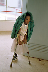 An Angolan child practices walking on crutches at the International Red Cross hospital in Huambo, Angola. Hundreds of thousands of Angolans  have lost limbs after stepping on a mine and in some towns one-in-four people have lost a limb or have been killed by mines. Despite a huge campaign to educate Angolans of the danger, most are forced to search the countryside for food despite the risk..(Photo by Ami Vitale)