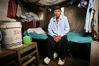 Bapak Baharuddin at the Jongaya leprosy settlement, Makassar, Sulawesi, Indonesia. Bapak Baharuddin, 60, is originally from Sinjai, Sulawesi.  He has spent 30 years in the Jongaya leprosy settlement and lives in a shelter for older people with Bapak Arsyad.