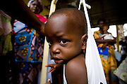 Two-year-old Guideon Nortey (9.5 kg) sits in a scale while being weighted at the Osu Maternity Home in Accra, Ghana on Tuesday June 16, 2009.