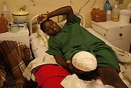 Zimbabwe, Howard Hospital. 2006. Teenage mother after leg amputation due to croc bite.