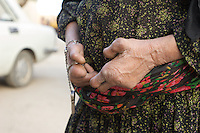 Iran. Minab. April 2008. Leprosy is an infectious disease that can cause nerve damage, muscle weakness, and skin lesions. An Iranian leprosy NGO founded 7 years ago is actively helping people who are infected with leprosy and live in poverty.