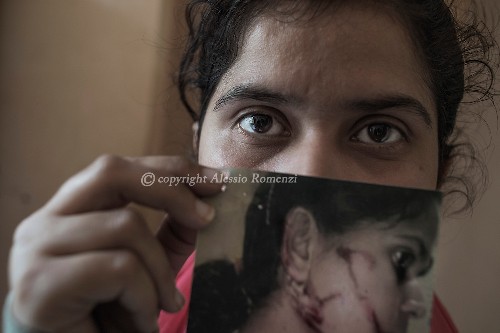 India, Delhi. After years of treats to convince her to leave the house where she was leaving with her husband and her in laws, her sister in law threw boiling oil on her face. <br /> At that point Parminder decided to go back to her parents bringing her three children. Alessio Romenzi