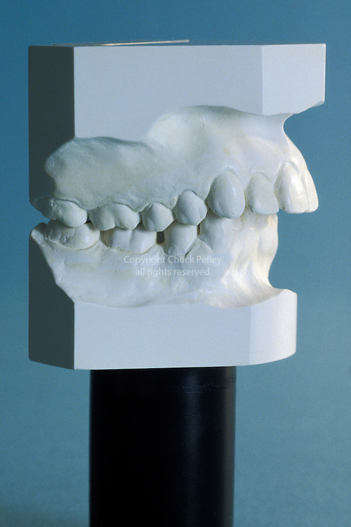 Orthodontic dental cast plaster models showing example of extreme overbite with teeth of the upper jaw prominently overlapping the teeth of the lower jaw