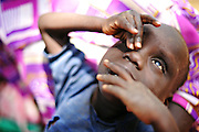 12-03-27   -- KITGUM, UGANDA --  Three-year-old nodding disease victim Michael Ojok is held by his mother Evelyn Abalo as he 'nods' at the Okidi Central Village Health Centre near Kitgum, Uganda on Tuesday, March 27. When Ojok nods, his eyes roll back and he claws at his face with his hands. In addition to nodding when presented with food, symptoms for victims of the disease vary from seizures, uncontrollable screaming and the urge to run.  Photo by Daniel Hayduk