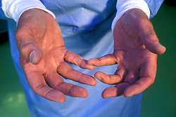 Stock photo of the hands of Dr. Cooley, Surgeon.