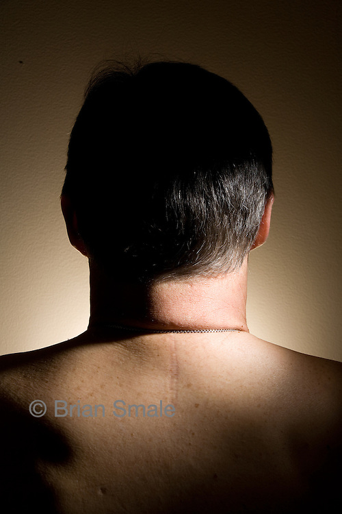 Dave's neck and back surgical scars.