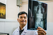 Dr. Nguyen Anh Tuan looks at an x-ray in the imaging room at Nhi Dong (Children's Hospital) 1 in Ho Chi Minh City, Vietnam. 2016