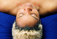 An african American woman relaxing with acupuncture needles in her face.