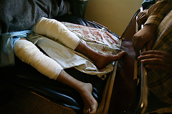 Policeman Abdul Amir Sami, 23, recovers at the local hospital after sustaining broken legs and shrapnel wounds, Iskandariyah, Iraq, Feb. 10, 2004. A truck packed with an estimated 500 pounds of explosives blew up at a police station. Dozens of would-be recruits were lined up to apply for jobs at the station. A hospital official said at least 50 people were killed and 50 others wounded. The local Iraqi police commander, Lt. Col. Abdul Rahim Saleh, said the attack was a suicide operation, carried out by a driver who detonated a red pickup as it passed the station.
