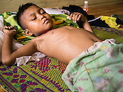21 MAY 2013 - MAE KU, TAK, THAILAND:  A boy with a severe case of malaria lays in his bed while he awaits a lifesaving blood transfusion at the Mawker Thai SMRU clinic in Mae Ku.  PHOTO BY JACK KURTZ