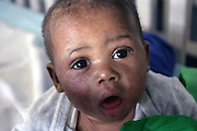 Kholiswa, 2, a HIV+ girl is portrayed in her bad at Thembacare HIV+ children's care hospice in Athlone, Cape Town. Her skin marks the signs of Antiretroviral (ARVs) treatment against the HIV virus.