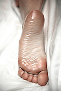 sole of foot on white sheet during Swedish massage