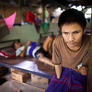 Magpu, 21,  a former soldier with the Karen National Liberation Army,  is seen at the Mae Hla, Thailand refugee camp Wednesday, Aug. 17, 2011.  Magpu, who uses only one name, was blinded and suffered partial loss of both arms in a landmine explosion during a battle against the Myanmar Army in March of 2009.  The KNLA has been fighting a civil war against the government of Myanmar for since 1949.   (Photo by David Longstreath)