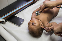 RECIFE, BRAZIL - JANUARY 8: Pediatrics doctor Danielle Cruz at The Professor Fernando Figueira Institute of Medicine, a public hospital, checks the heart rate of three-month-old Isabella Vitoria da Silva Honoro who was born with suspected case of zika-related microcephaly. The baby listens to music on a cellphone, which is known to calm crying babies with microcephaly.<br /> <br /> The mosquito-borne Zika virus continues to spread in Brazil, alarming health officials and expecting mothers that their babies will be born with abnormal brain development called microcephaly. While researchers have yet to make a connection, Brazil has the highest number of babies born with mircocephaly - the most cases in Recife, Pernambuco - from mothers who tested positive to the Zika virus. There are about 3,530 suspected cases of zika-related microcephaly in Brazil.