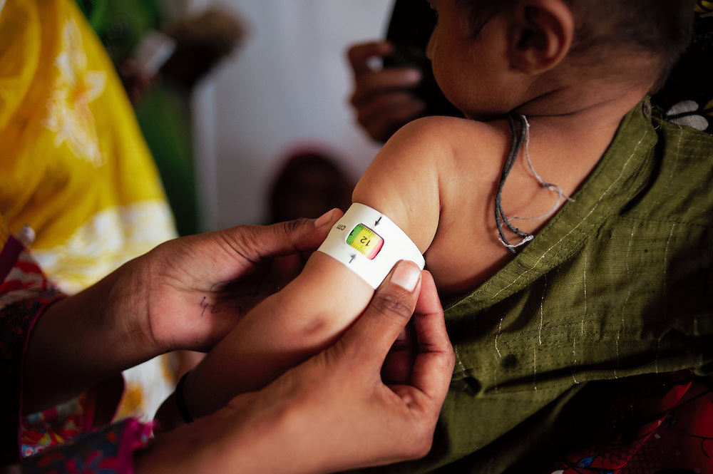 A baby's arm is measured for signs of malnutrition at the Government Health Clinic in the village of Babrio Jat, Thatta, Sindh, Pakistan on July 2, 2011.