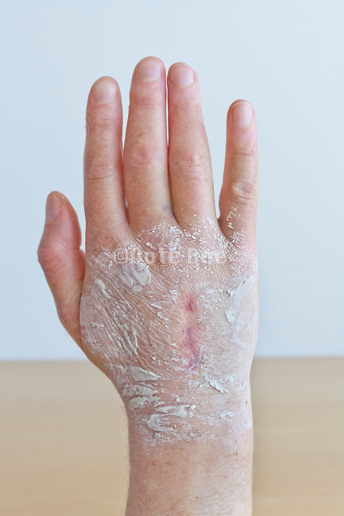 swollen hand with operation scar covered with a grey Bentonite healing clay