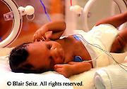 Medical Pre-mature Infant Care, Hospital Incubator, Nurse