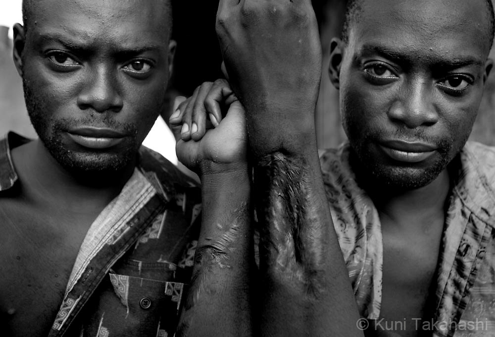 Ex-combatants Ahmed Gray, left, and his twin brother Eugene show bullet wounds they received during the civil war, on May 1, 2008, in Monrovia, Liberia. Ahmed and Eugene, both 28, who joined militias when they were 12 years old and fought against each other at one point, are now homeless. Although the country's 14-year civil war ended in 2003, many ex-combatants are still struggling to survive due to the lack of jobs in a weak economy.