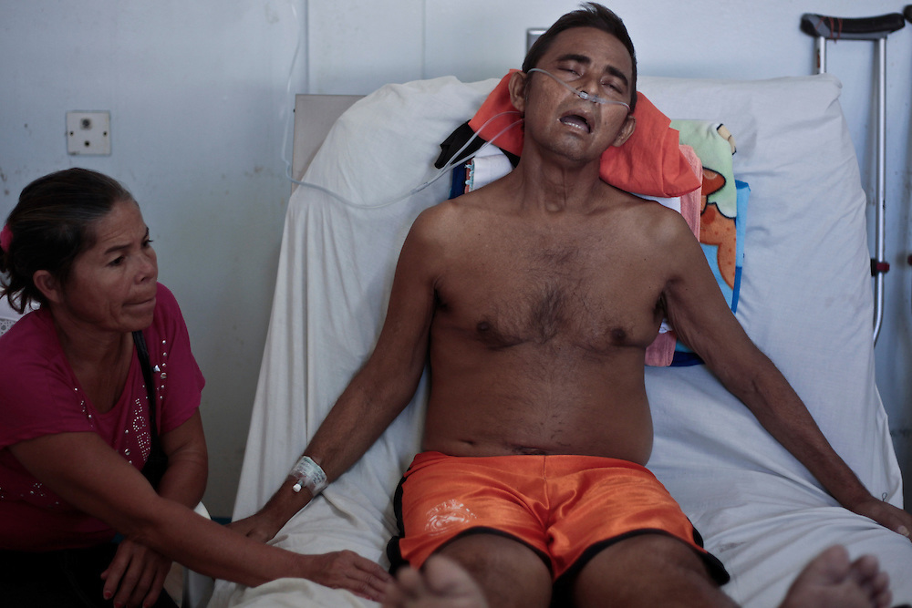 In this photo taken Tuesday, Jan. 24, 2012, Segundo Zapata, 49, is seen inside a hospital in Chinandega, Nicaragua, Zapata, chronic renal failure patient and former sugar cane cutter of the San Antonio sugarmill during 19 years. A mysterious epidemic is devastating the Pacific coast of Central America, killing more than 24,000 people in El Salvador and Nicaragua since 2000 and striking thousands of others with chronic kidney disease at rates unseen virtually anywhere else. Many of the victims were manual laborers or worked in the sugarcane fields that cover much of the coastal lowlands.