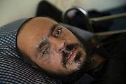 Naser Taref, 29 years, in an improvised hospital of the Medical Tawhid Foundation in Gaziantep, Turkey. Naser was a general military commander of the Liwa al-Tawheed & Jihad brigade in Hasakeh. He lost his right leg, one eye and several fingers when a bomb exploded under his car in November 2013. He is married and has a child, he was a mechanic before the war. His brigade, the Liwa al-Tawhid, is one of most famous in Aleppo and counts 12,000 fighters and organizes its own medical services (Tawhid Medical Foundation) in Turkey.<br /> <br /> Hôpital secret du Tawhid Médical Foundation a Gaziantep, Turquie. Naser Taref, 29 ans, ASL, commandant général militaire de Brigade Liwa Al-Tawhid & Jihad. Marié a 1 enfant. Mécanicien avant la guerre. s'il pouvait il repartirait au combat. A perdu la jambe droite, 1 œil et des doigts. il y a 3 mois a Hasakeh, ou il luttait contre les shiites d'Irak, un bombe a explosé sous sa voiture qui était piégé. Sa brigade, le Liwa Al-Tawhid, est un de plus connus à Alep, compte 12000 combattants et autant de membres civils, et a organisé son propre service médicale (Tawhid Médical Foundation) en Turquie.