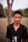 BOM age 14 born with HIV.He lives together with other HIV Teenager and children in a village near Lopburi.