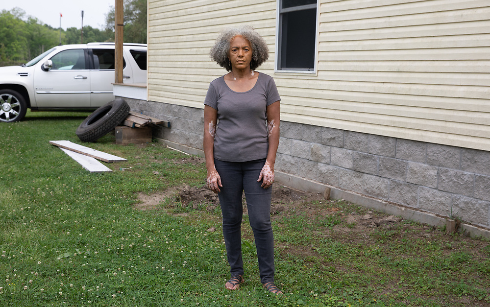 "Lydia Gerard, member of the Concerned Citiznes of St. John the Baptist next to her house in Reserve, LA.  She is very worried that the toxic emmissions from the DuPont/Denka plant and others near by make her more vulnerable to catching the coronavirus. ""There are lots of peoples I know that are being impacted. It is too many for this small area. It isn't a coincidence we have a high death rate here."" She wants Gov. Edwards to force the petrochemical plants around them to bring down emissions, especially, the Denka plant."