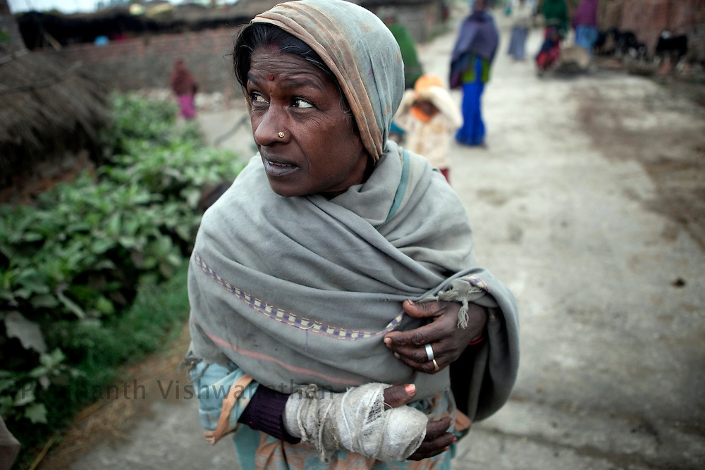 50 year old, Saraswati Devi's has a fractured hand allegedly broken by the baton charge of the local police while peacefully demonstrating outside the asbestos factory of the Balmukund Cement and Roofings Ltd. (BCRL) on January 22, 2011, Chainpur, Muzzafarpur Dist. Bihar, India, on Thursday, February 17, 2011. Photographer: Prashanth Vishwanathan/Bloomberg News