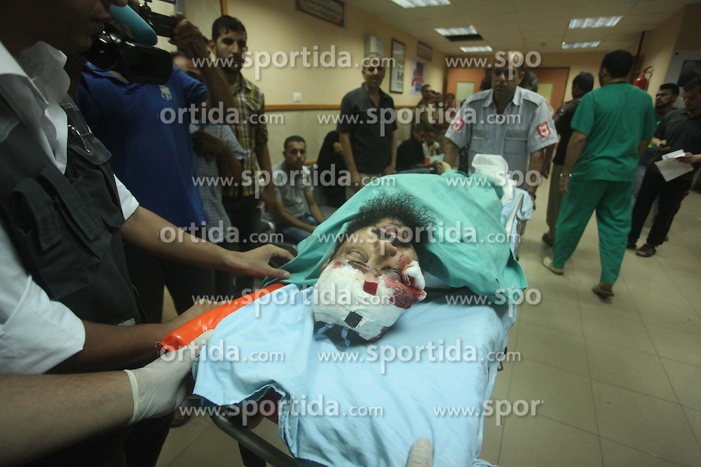 07.08.2015, Dair EL-Balah, PSE, Nahostkonflikt zwischen Israel und Pal&auml;stina, im Bild ein verwundeter Pal&auml;stinenser im Krankenhaus // A wounded Palestinian is brought into a hospital following what witnesses said was an Israeli air strike in the central Gaza Strip August 7, 2015. An Israeli plane attacked an armed training camp of the Islamist Hamas group, which dominates the Gaza Strip, on Friday, wounding four security men, in an apparent response to a rocket fired earlier from the territory, witnesses and medical officials said, Palestine on 2015/08/07. EXPA Pictures &copy; 2015, PhotoCredit: EXPA/ APAimages/ Ashraf Amra<br /> <br /> *****ATTENTION - for AUT, GER, SUI, ITA, POL, CRO, SRB only*****