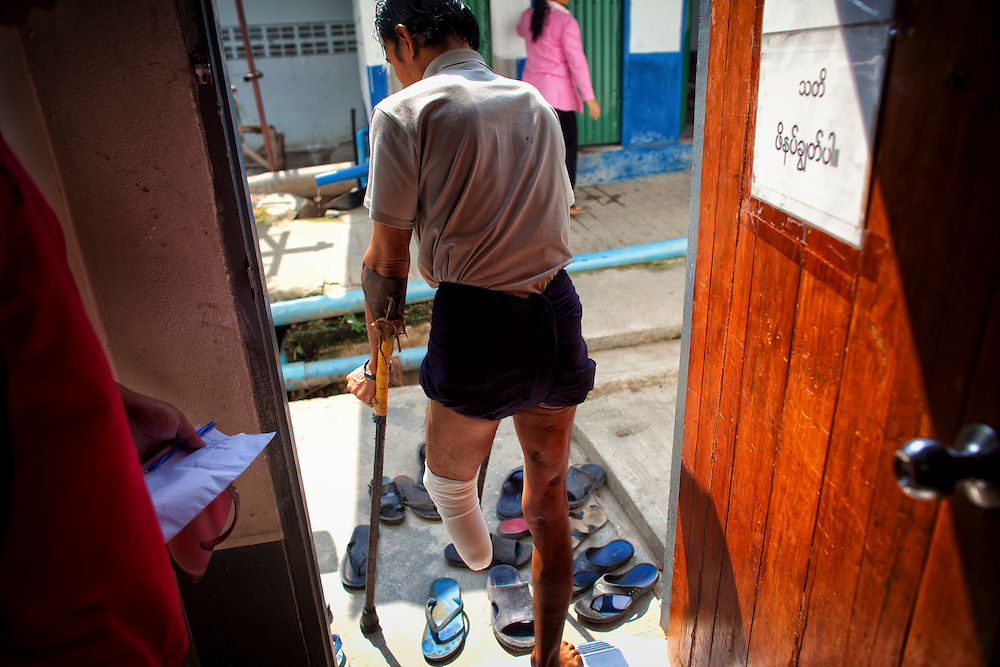 Myo Aung, who lost a leg to a landmine, waits for his new prosthetic limb at the Mae Tao clinic in Mae Sot, Thailand, Tuesday, Feb. 21, 2012.