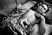 Survivor - Lhokseumawe massacre. Aceh 1999 after Indoesian troops fired upon unarmed civilians protesting for independence.