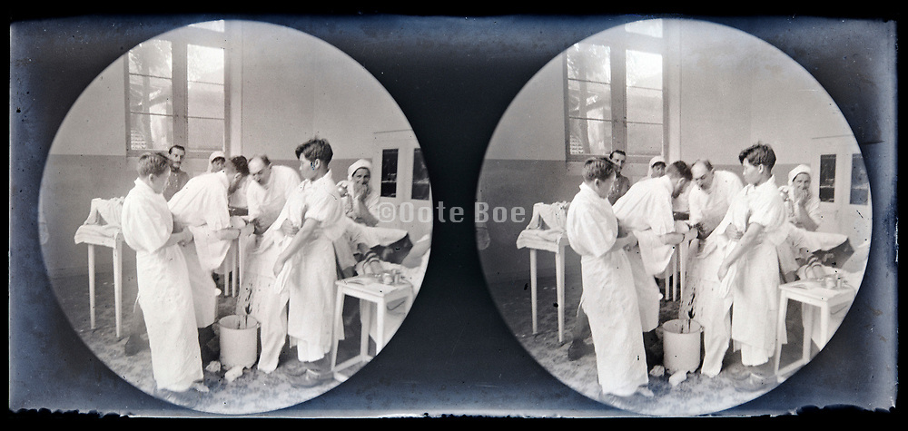 leg amputation in hospital operation room circa 1920s