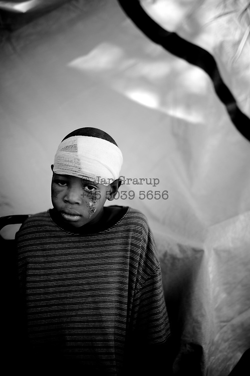 A boy waiting  to get treatment at the general hospital - many are still waiting -