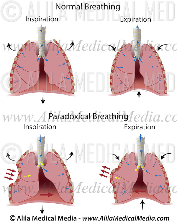 Paradoxical Breathing Alila Medical Images