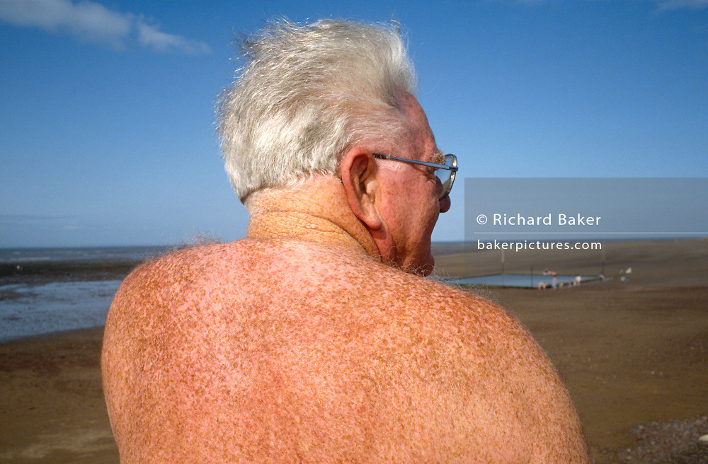 An elderly man sunbathes on a summer beach in the seaside resort of Paignton, England. The gentleman looks out across the stretch of sandy coast at low-tide and a square pool made by flooding high-tide sea water provides a natural place to swim when the sea is far out. The male in the foreground is seen in close-up and we see the expanse of his back covered in freckles. After many sunny hours beneath solar rays he is tanned but not burned. Nevertheless, he is at risk of the pigment in those freckles turning into melanomas, the cause of skin cancer. More than 10,000 people a year are developing the deadliest form of skin cancer as a result of package holidays and excessive use of sunbeds. Cases of malignant melanoma rose by 650 (6.5 per cent) in a single year as a result of binge-tanning at home and abroad, according to Cancer Research UK.