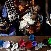 Malnutrition Ward | Kampala, Uganda