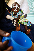 Iriba, -, TCD, 20070823:  The MSF Hospital in Iriba -  measuring and handing out premix and nutrition bisquits to malnourished refugee children at the feeding programme. Kadidja (2 years) gets premix from her mom.<br /> The refugees have fled the atrocities in Darfur - a war on resources fueled by the Sudanese sponsoring of the Janjaweed militiamen.<br /> The Janjaweed (transl.: A man with a gun on a horse) have been pillaging Zaghawa, Masalit and Fur villages in a conflict over diminishing water and land resources.