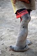 Close up of a boy's leg that is affected by elephantiasis in the village of Kouakourou, Mali. Elephantiasis is a largely irreversible enlargement and thickening of tissues; specifically, the enormous enlargement of a limb caused by obstruction of lymphatics by filarial worms (especially Wuchereria bancrofti).