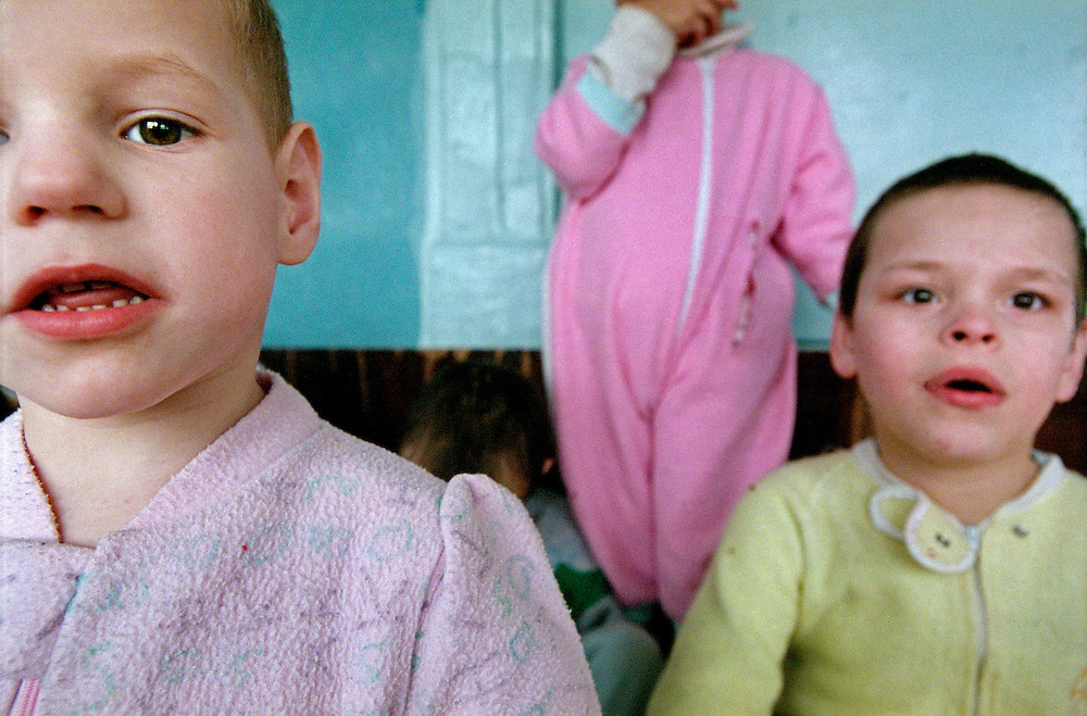 Ukraine 2001...Children that no one wants live in an orphanage in Zaluzhya. Many of the children here who were born shortly after the Chernobyl accident are sick and show sympthoms that could be related to radiation, but most of them have never met a doctor. The orphange have very small fundings and is constantly understaffed...Photo: Markus Marcetic/MOMENT