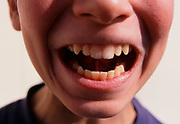 A793T1 Close up of boy's mouth and teeth looking fierce