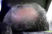 back view of a balding man