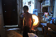 CHENGDU, CHINA - APRIL 28: (CHINA OUT) <br /> <br /> Cling film Boy<br /> <br /> EB sufferer Liu Liangchen stands in front of an electric heater to dry his rotten skin at home in Chengdu, Sichuan Province of China. Liu Liangchen, 14, was born with Epidermolysis bullosa (EB), an inherited connective tissue disease causing blisters in the skin and mucosal membranes. He is 1.1m tall and weighs less than 15kg. He doesn't have any finger nails and toe nails. He wraps himself with cling film to alleviate the pain, and wears long-sleeved clothes and long trousers all the year round. <br /> ©Exclusivepix